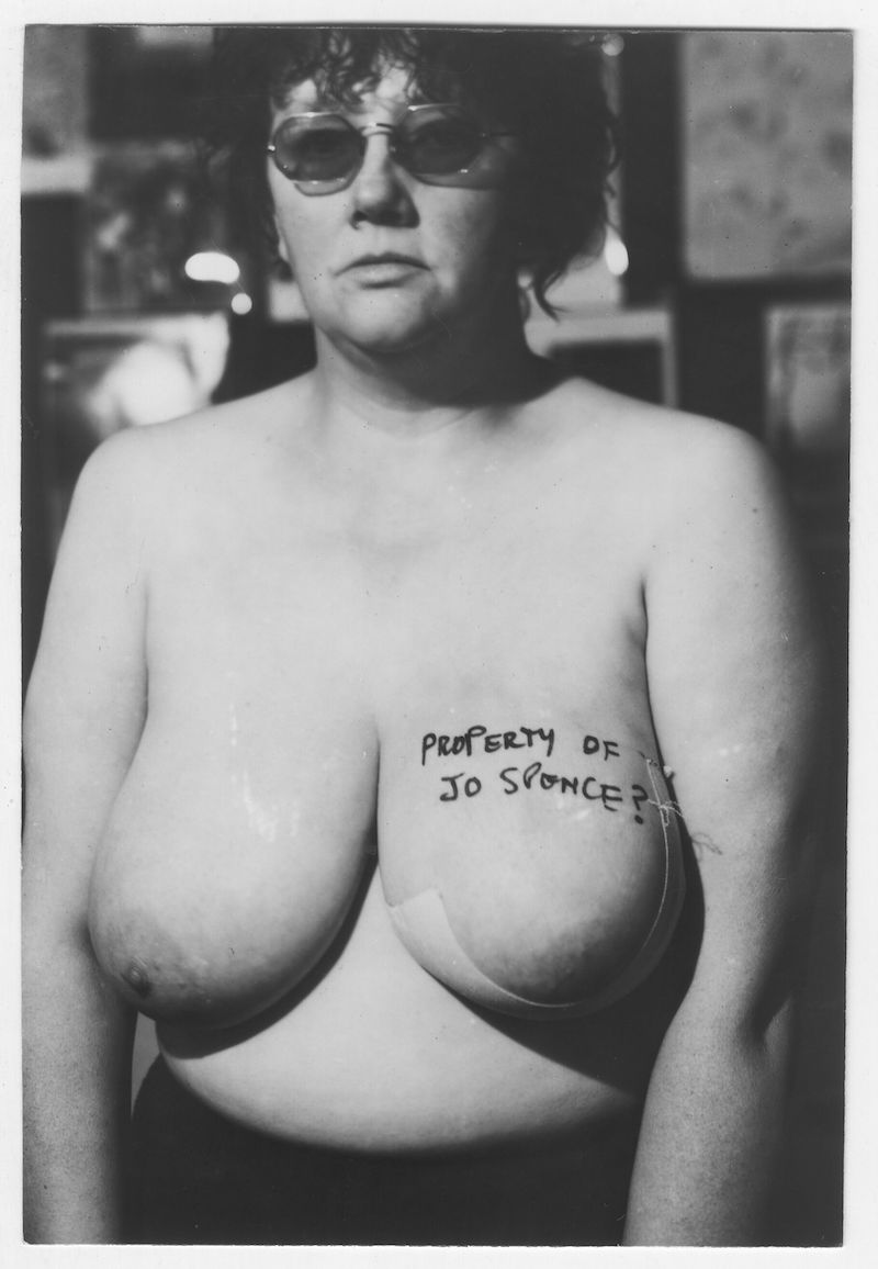 Jo Spence in collaboration with Terry Dennett, The Picture of Health: Property of Jo Spence?, 1982, gelatin silver print on paper, 16 x 12''.